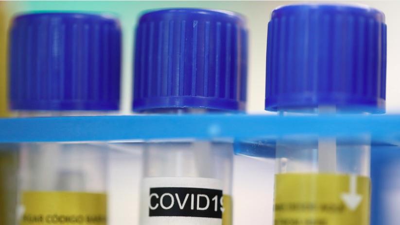 В США назвали версию происхождения коронавируса